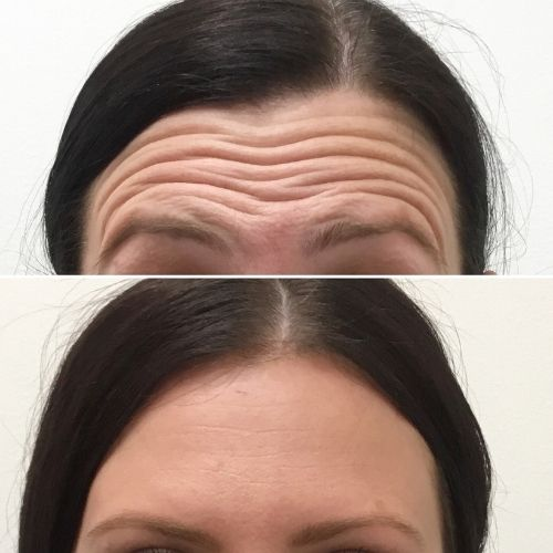 Anti-Wrinkle Before & Afters Sydney