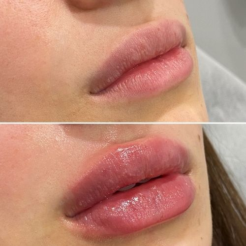 Dermal Filler Before & Afters Sydney