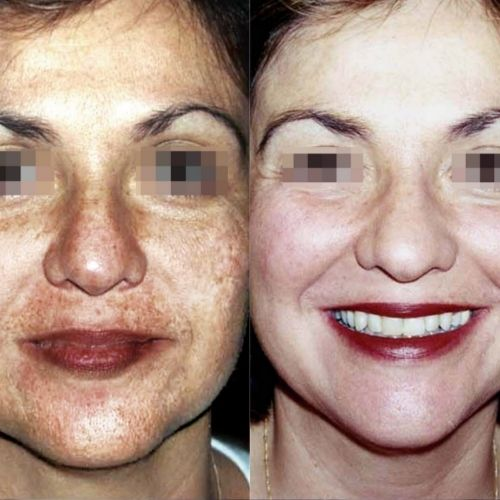Depigmentation Before & Afters Sydney