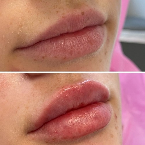 dermal-filler-before-and-after-13