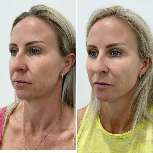 Sydney Thread Lift Before & After