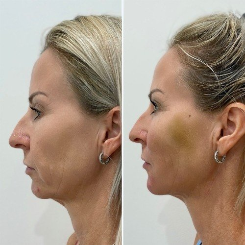 Thread Lift Before & After Sydney