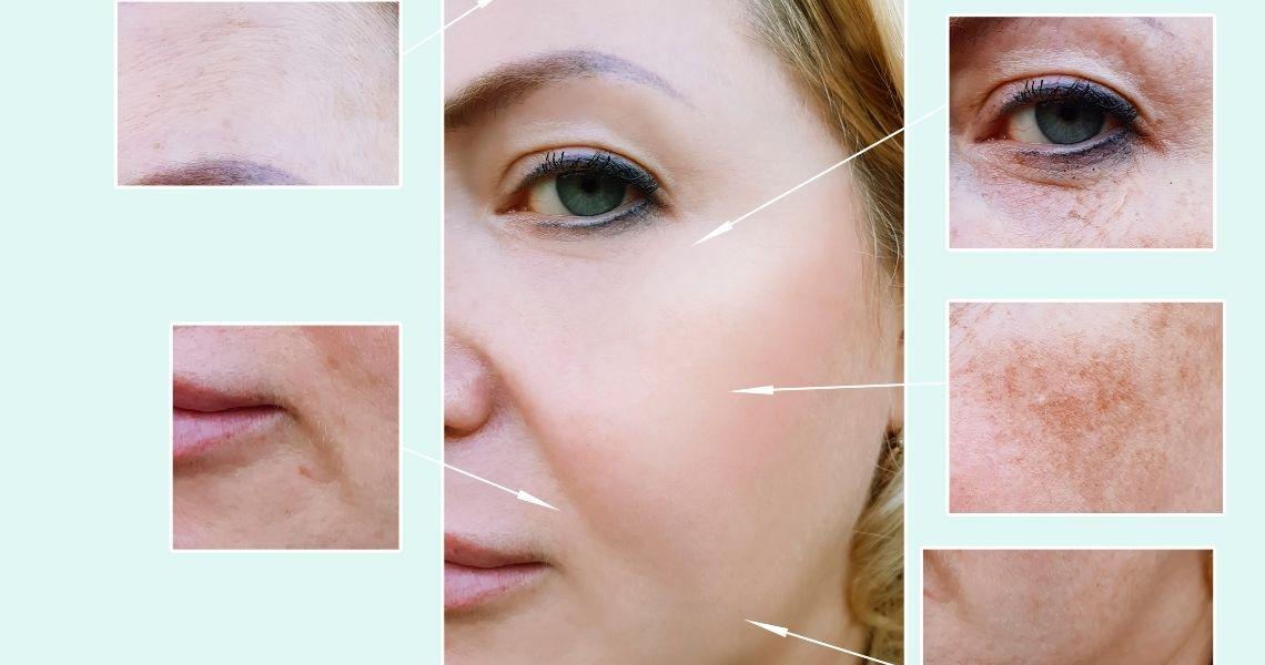 Skin Pigmentation Causes - Skin Pigmentation Treatments