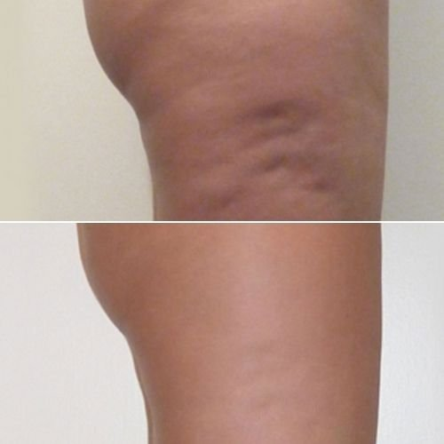 Cellulite Removal Sydney - Cellulite Removal Before & After