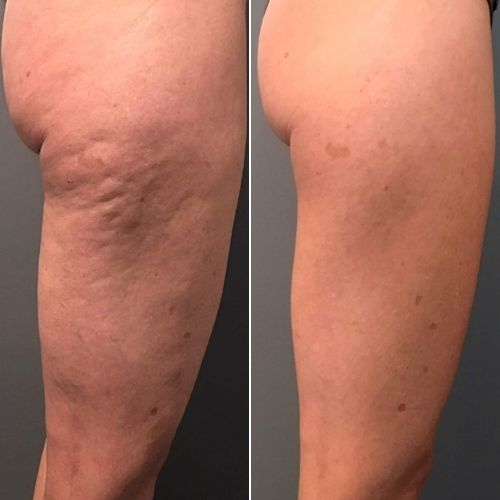 Best Cellulite Treatment in Sydney - Cellulite Before & After