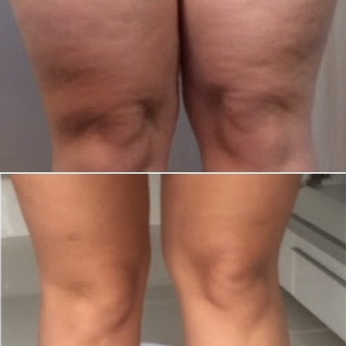 Cellulite Treatment Near me Sydney - Cellulite Treatment Before and After