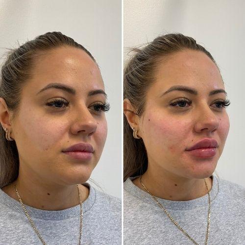 Cheek Dermal Fillers Before & After