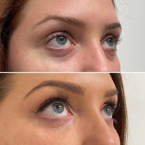 Dermal lift Before and After Sydney