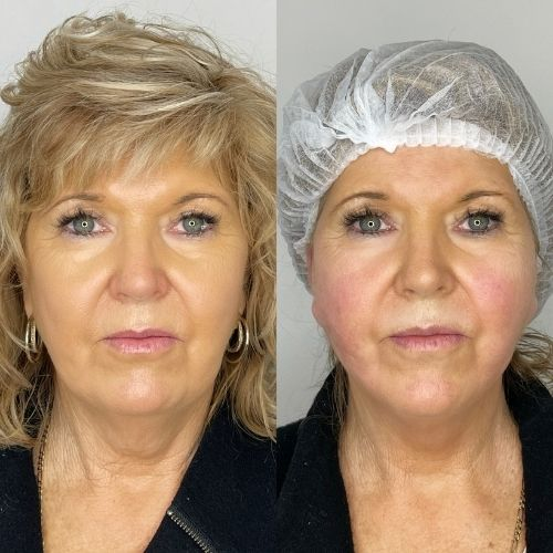 Sydney Thread Face Lift Before & After