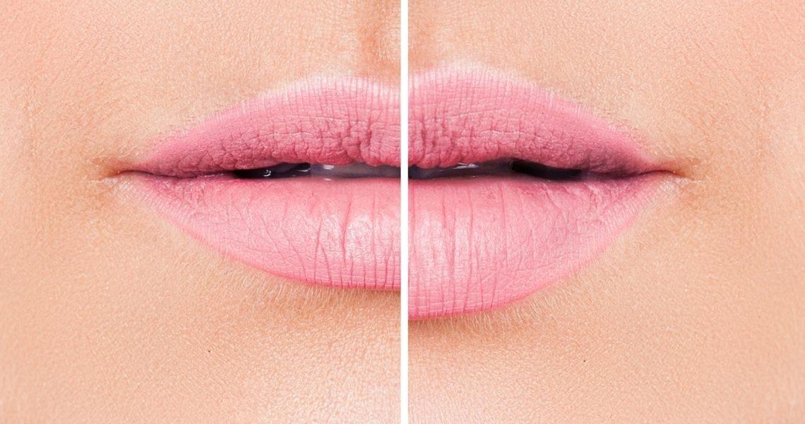 How To Make Lip Fillers Last Longer