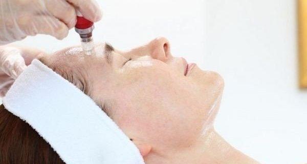 Best Skin Needling & Micro Needling Sydney
